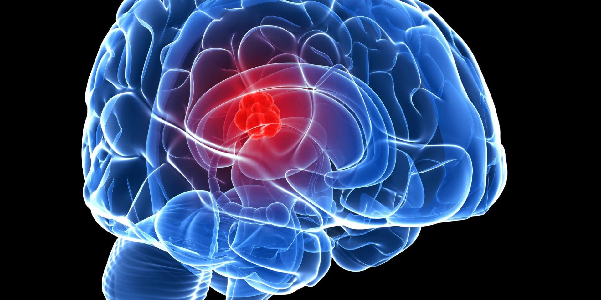 علت تومور مغزی