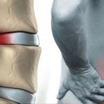 درمان دیسک کمر بدون جراحی